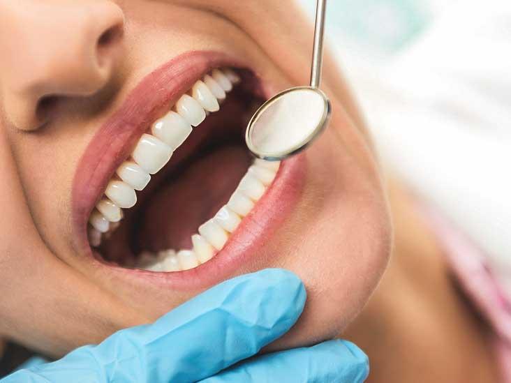 Permanently Dental Health
